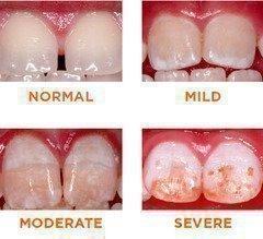 Формы гиперплазии эмали зубов