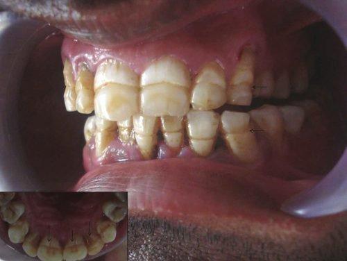 Гиперплазия эмали
