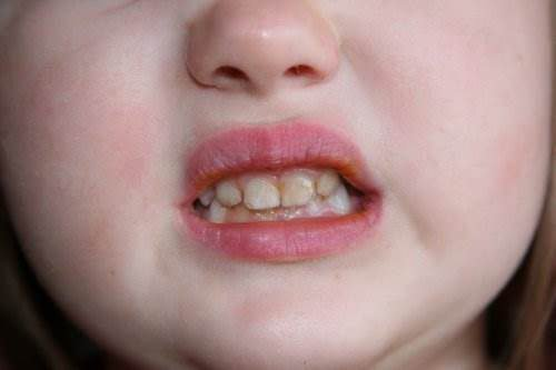 Гиперплазия эмали у ребенка