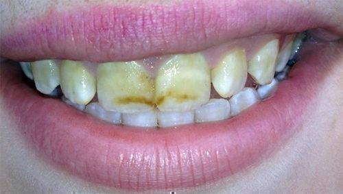 Гипоплазия зубов - недостаток фтора