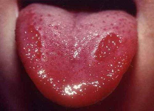 Красные пятна на языке