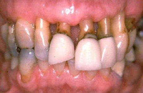 Глубока стадия пародонтоза с выпадением зубов