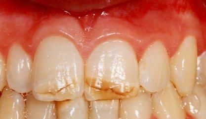Глубокие горизонтальные трещины на зубах