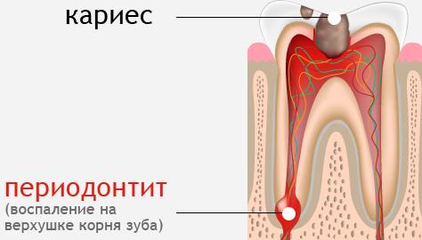 Проявление периодонтита
