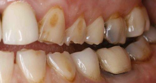 Вторая стадия эрозии эмали зубов