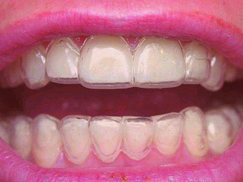 Каппы для лечения прозрачности зубов