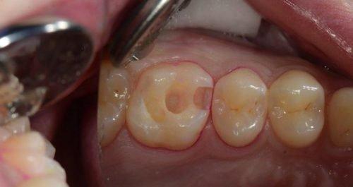 Чистка полости в зубе