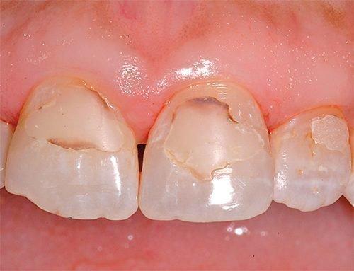 Вторичный кариес дентина передних зубов