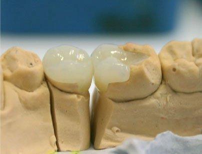 Керамические вкладки в зубы
