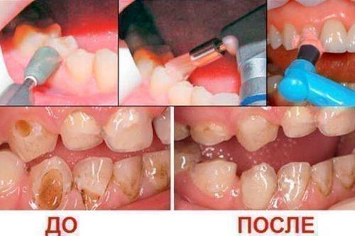Лечение лазером - этапы