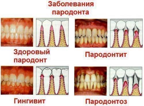 Заболевания пародонта - фото и схема