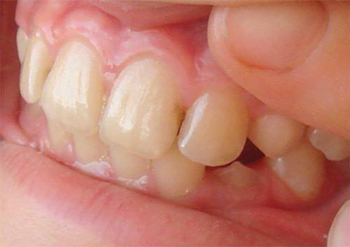 Межзубный кариес затрагивает 2 зуба