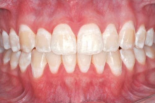Начальная стадия кариеса у беременных - все зубы