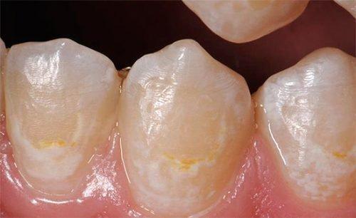 Нарушения эмали зубов