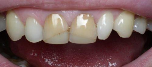 Наклонные трещины на зубах