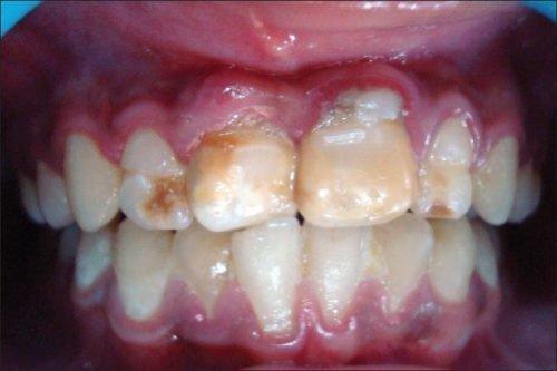 Наросты на зубах - эмалевые капли