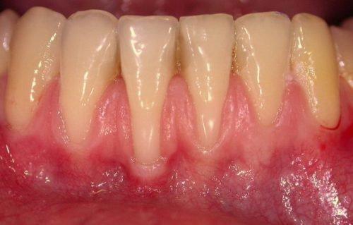 Оголение шейки зубов при пародонтозе