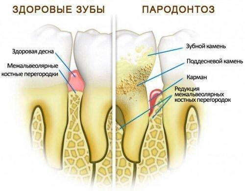 Пародонтоз заболевание тканей пародонта, окружающих зубы