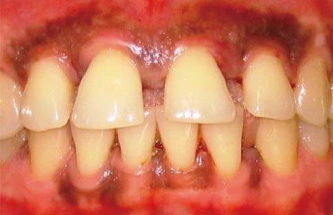 Расхождение зубов при пародонтозе у ребенка