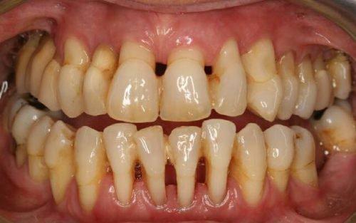 Вторая стадия пародонтоза с оголением шейки зубов