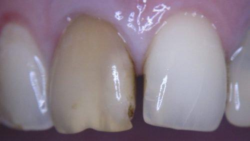 Потемнение зуба после удаления нерва