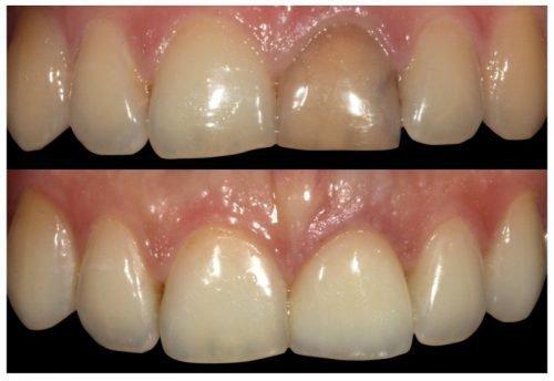 Зуб после удара - потемнение и лечение