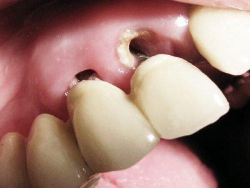 Потеря зуба из-за кариеса корня