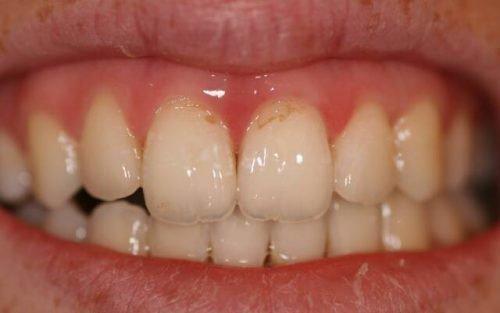 Пришеечная эрозия эмали зубов