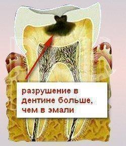 Признак кариеса дентина - схема