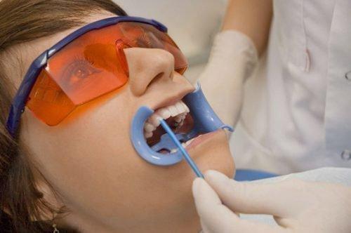 Процедура фторирования зубов у стоматолога
