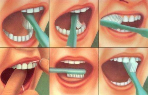 Профилактика кариеса - гигиена рта