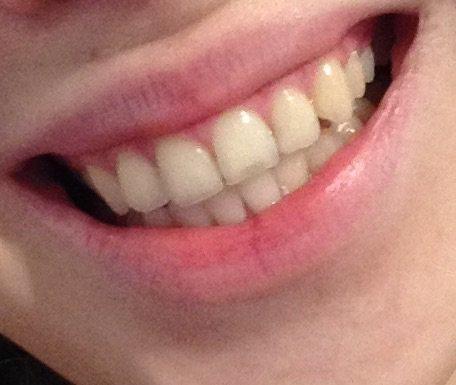Прозрачные кончики зубов при курении