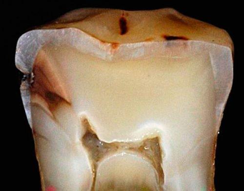 Разрез зуба с кариесом