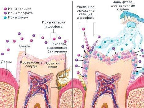 Деминерализация и защита эмали зубов