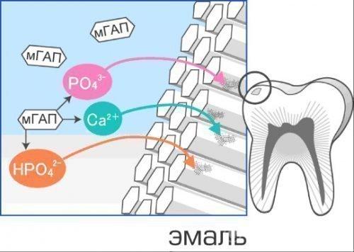 Реминерализация эмали зубов комплексными препаратами