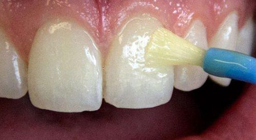 Фторирование эмали зубов - процесс