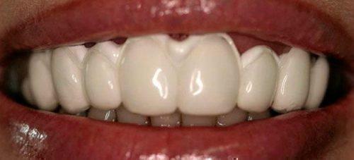 Реминерализация зубов при клиновидном дефекте