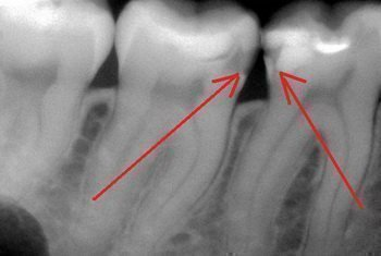 Рентгеновский снимок кариеса