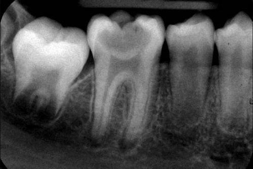 Снимок зубов