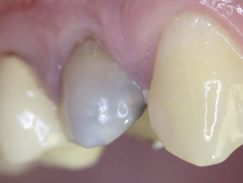 Потемневший зуб после резорцин-формалинового лечения