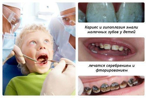 Показания для серебрения зубов