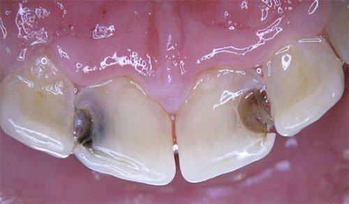 Средний кариес зубов