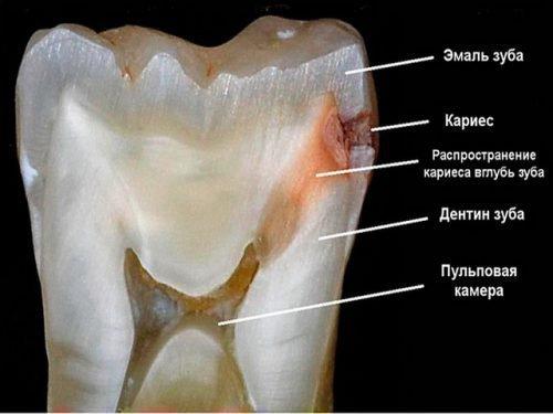 Средний кариес на зубном разрезе