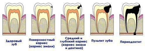 Связь зубных заболеваний - кариеса, пульпита, периодонтита