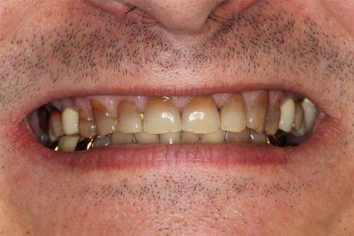 Тетрациклиновые зубы у мужчины
