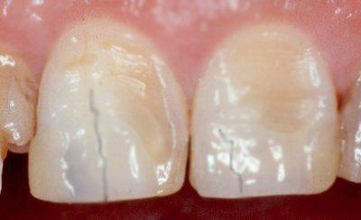 Трещины и эрозия эмали зубов после брекетов
