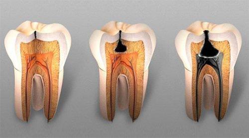 Стадии кариеса на зубах