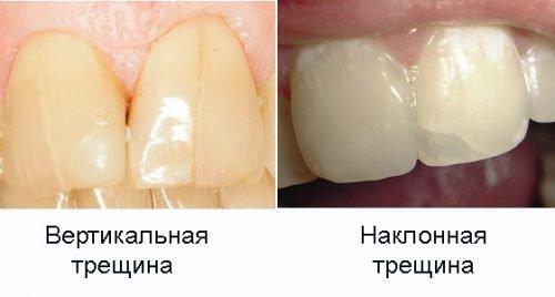 Трещины эмали - эстетический деффект