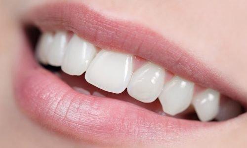 Здоровая эмаль зубов - белая и ровная