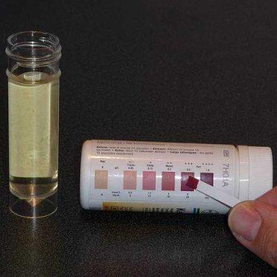 Ацетон в моче - проверка